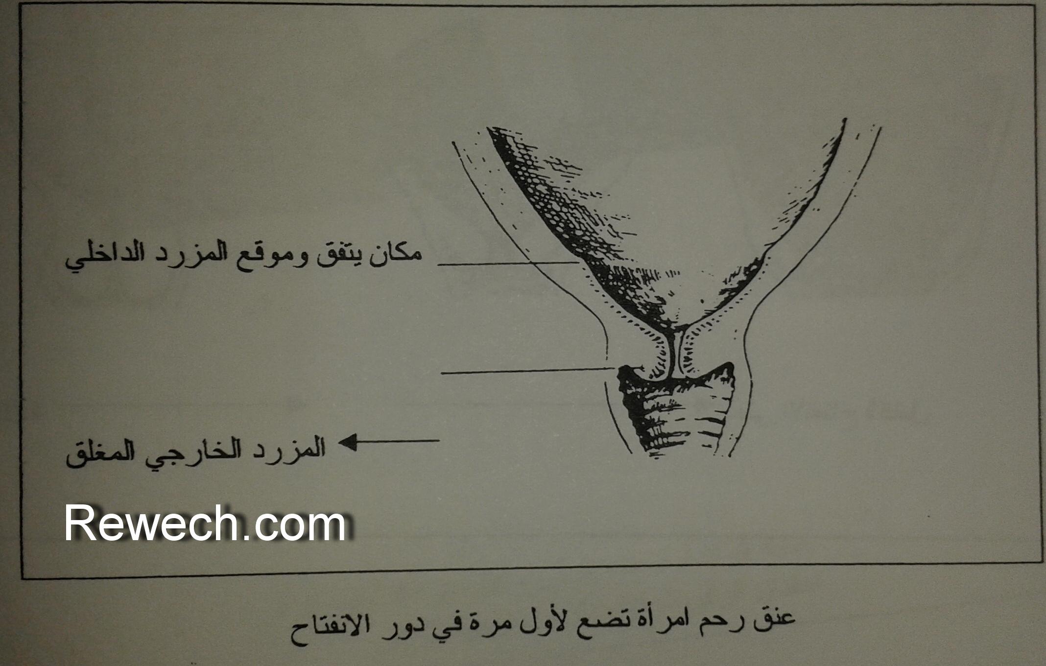 عنق رحم امرأة تضع لأول مرة في دور الانتفاخ