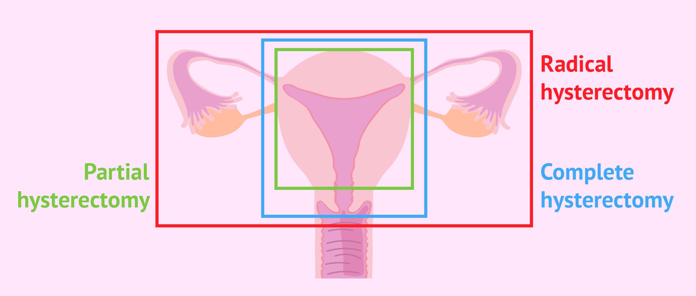 استئصال الرحم